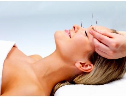 akupunktur3